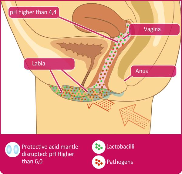 A Healthy Vulva